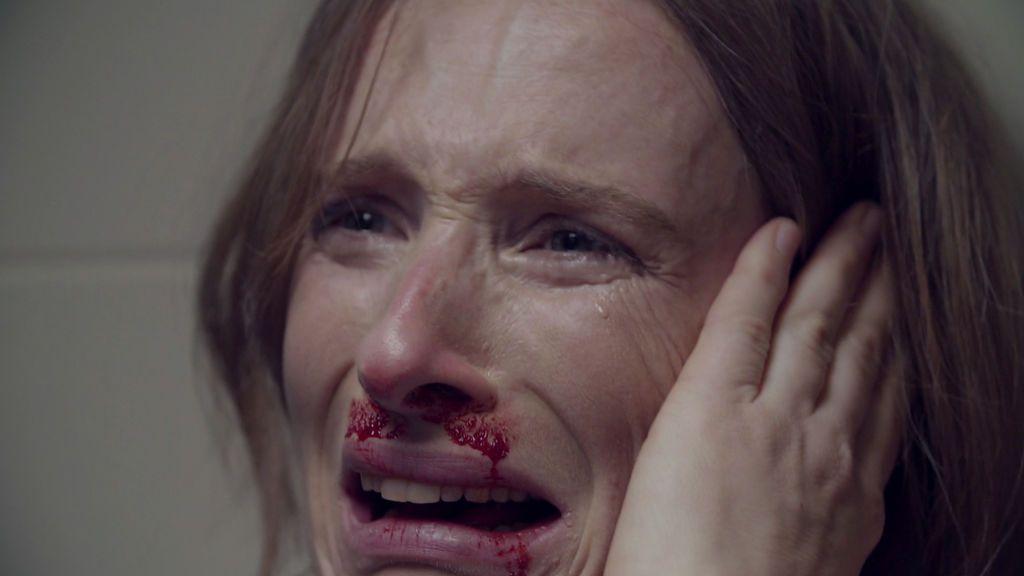 """Gemma sufre una brutal agresión de su pareja: """"Pensé que era el final de mi vida"""""""