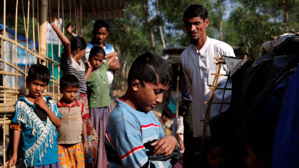 Md Idris, de 10 años, niño refugiado de Rohingya, que dijo haber sido baleado por el ejército de Myanmar hace cuatro meses, posa para una foto en el campo de refugiados de Kutupalong cerca de Cox's Bazar, Bangladesh