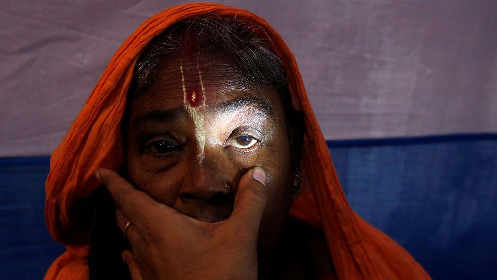 """Una santa mujer hindú se somete a un examen ocular en un campamento gratuito organizado por asistentes sociales en un refugio improvisado, antes de dirigirse a un viaje anual a la isla Sagar para el festival de un día de """"Makar Sankranti"""", en Calcuta, India"""