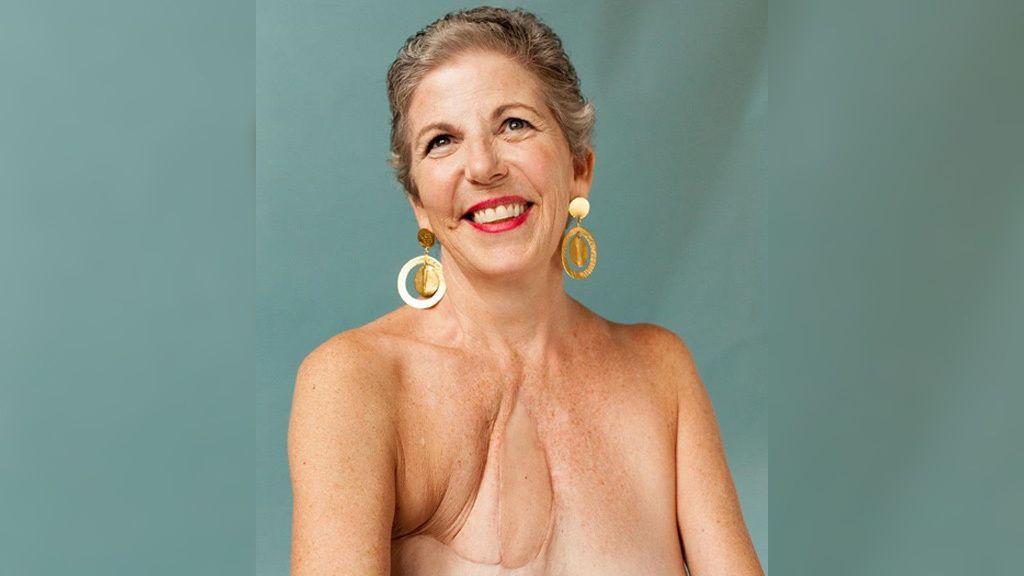 """Bárbara: """"En 2014 me diagnosticaron angiosarcoma de mama, un cáncer raro y agresivo. Requirió tres cirugías y dos tratamientos de quimioterapia. Más tarde estas son las cicatrices que tengo. Mi última operación fue una cirugía innovadora que implicó la extracción del esternón y cuatro costillas, que fueron reemplazadas por cemento quirúrgico, músculo de la espalda y un injerto de piel. Me tomó mucho tiempo abrazar mis cicatrices. Documentan mi viaje y el coraje y la fuerza que no creía tener. Recientemente me dijeron que el cáncer había regresado. Sorprendentemente me siento en paz"""""""