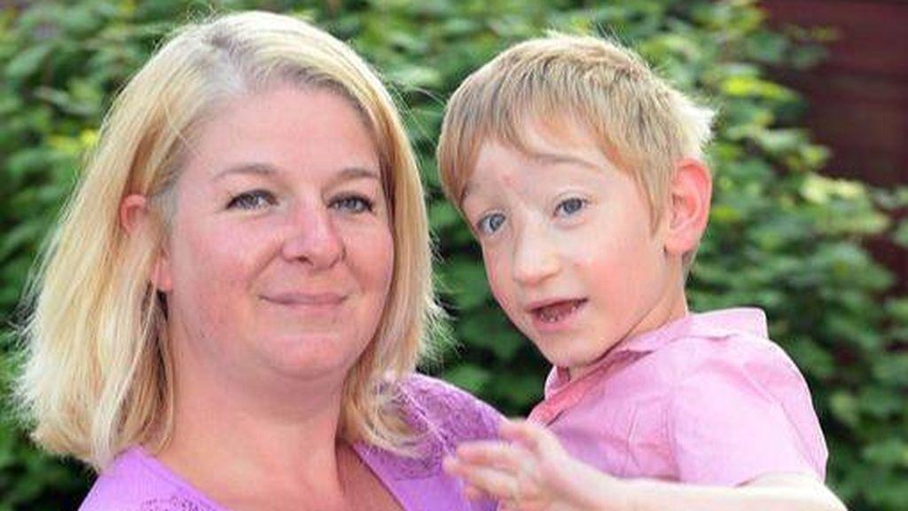 Jamie cumple diez años: nació con el cerebro fuera y los médicos no le daban ni una hora de vida