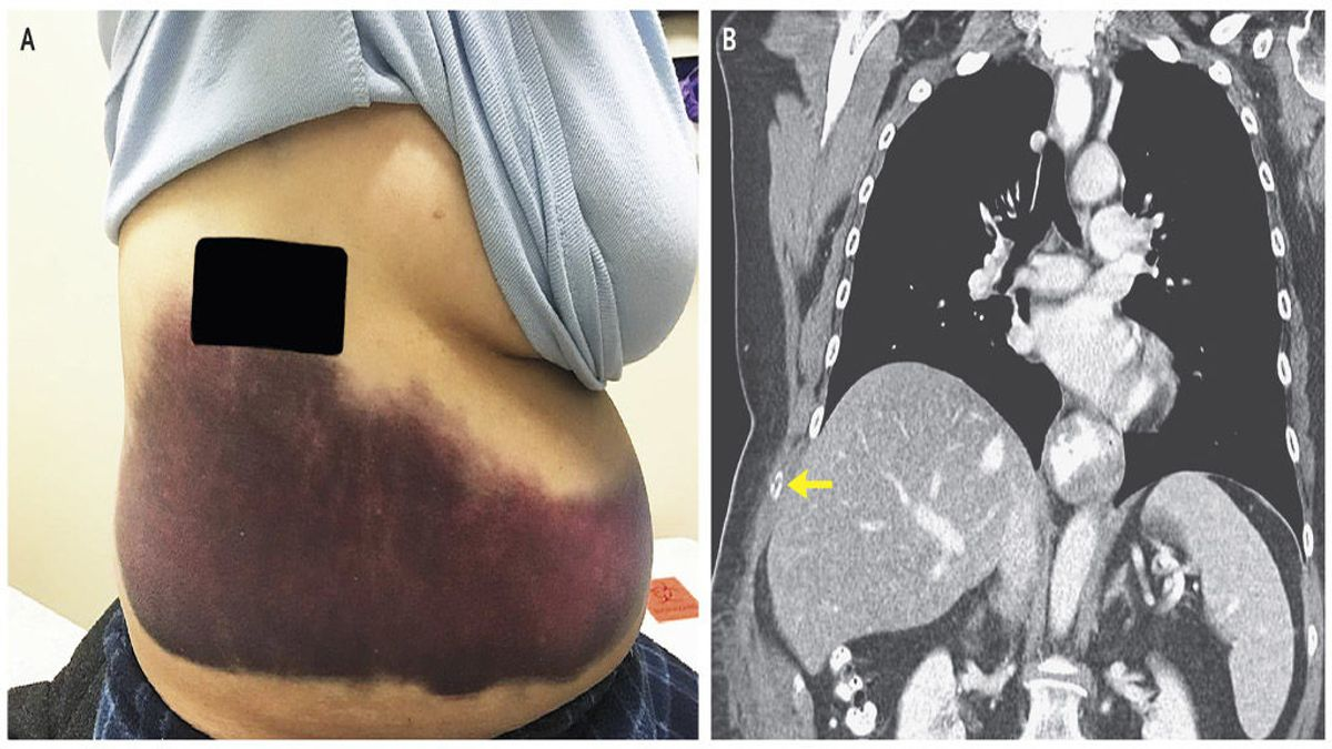 Una mujer de 66 años se rompe una costilla en un ataque de tos