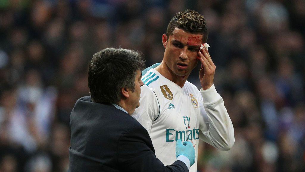 La espectacular brecha de Cristiano Ronaldo que hizo saltar las alarmas en el Real Madrid