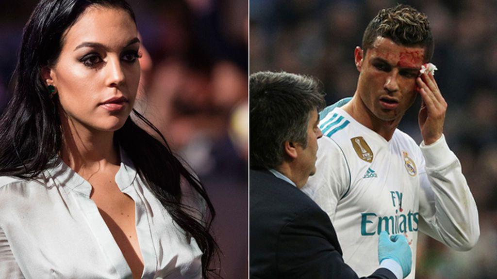 La reacción de Georgina al ver la sangrienta brecha de Cristiano en el Bernabéu