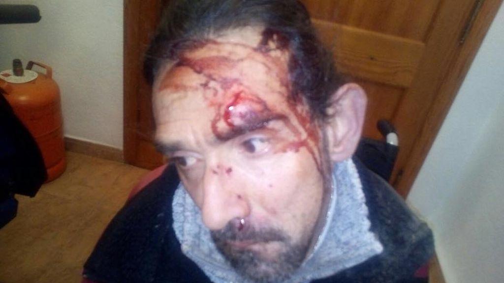 Brutal agresión a un hombre con parálisis cerebral en Valencia