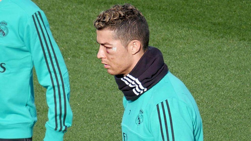 Cristiano Ronaldo reaparece en el entrenamiento del Madrid con el ojo totalmente morado