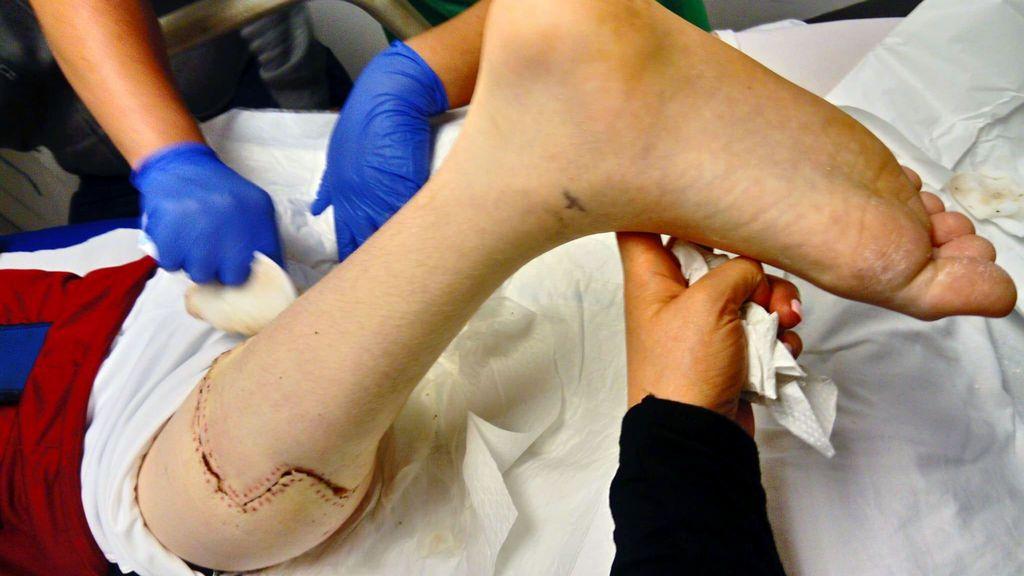 operacion rodilla