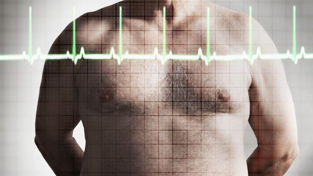 Los altos niveles de colesterol hacen que los tumores crezcan cien veces más rápido