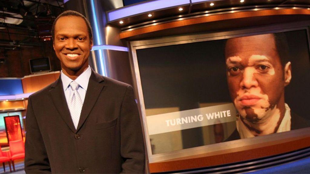 El vitiligo que obliga a este presentador de noticias a maquillarse para salir en pantalla