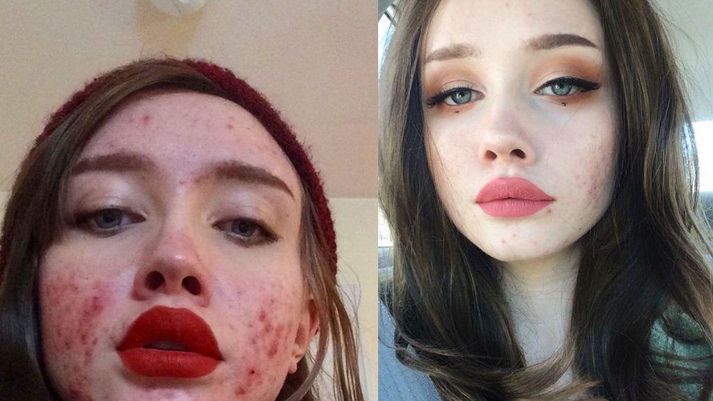 Los 'instagrammers' se rebelan contra las pieles perfectas