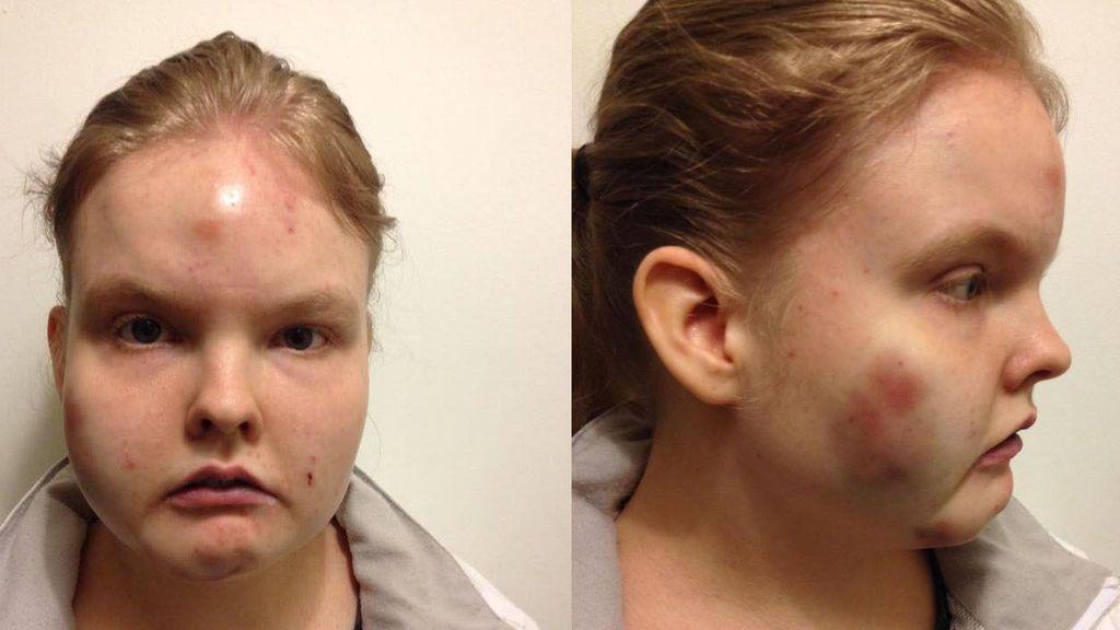 El horror de Lyndsay, con autismo: Lesiones en su rostro y cuerpo tras ser golpeada en el colegio
