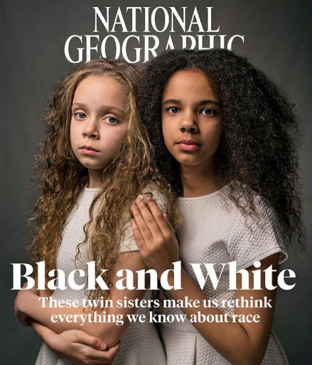 Marcia y Millie, las gemelas de distinto color  a las que nadie cree que son hermanas