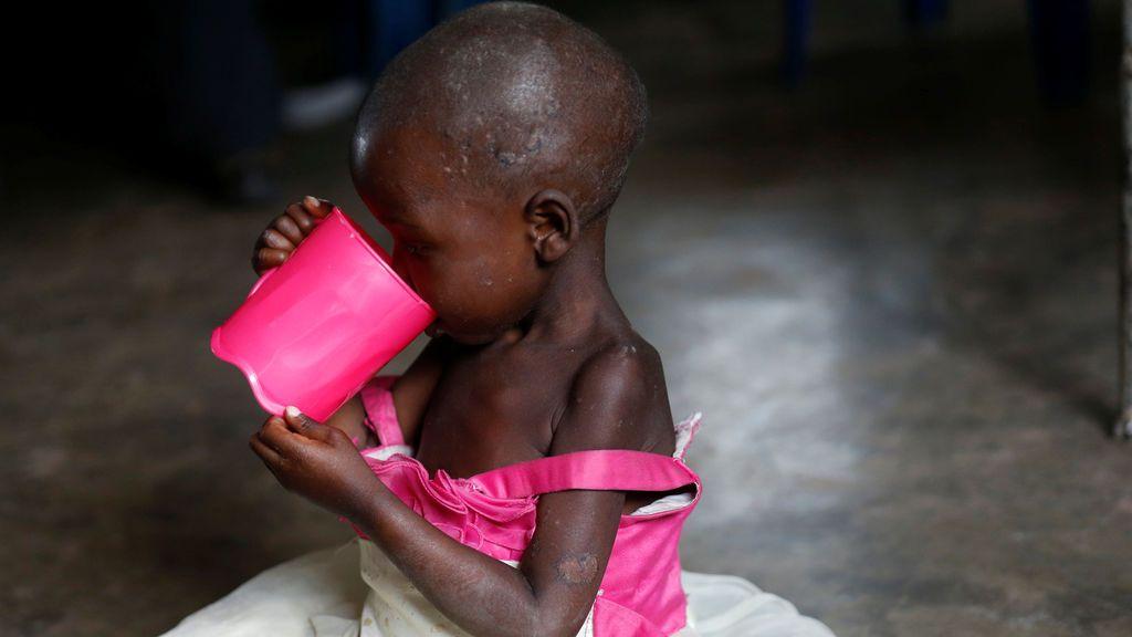 Una niña come para hacer frente a la desnutrición