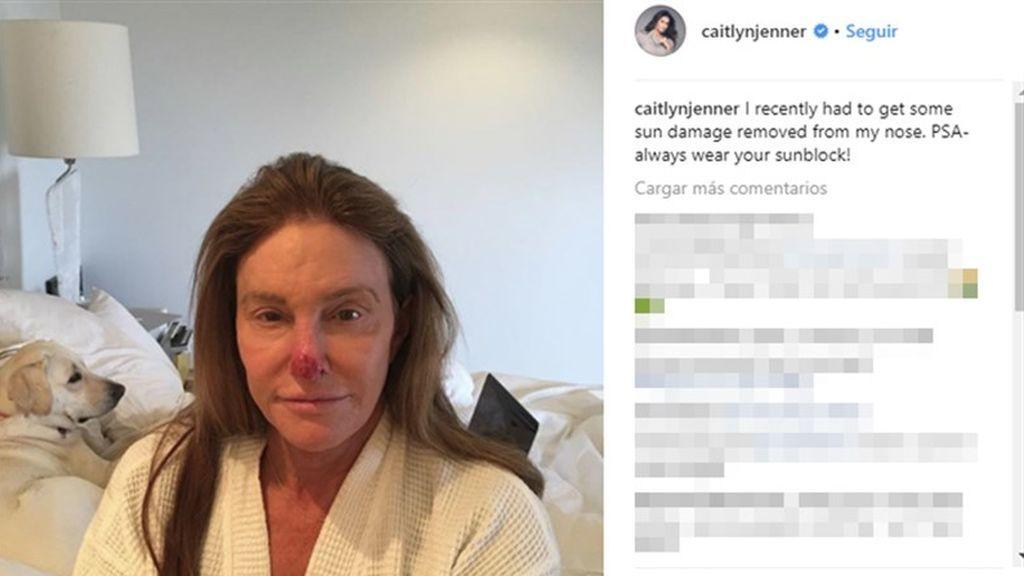 caitlynJenner