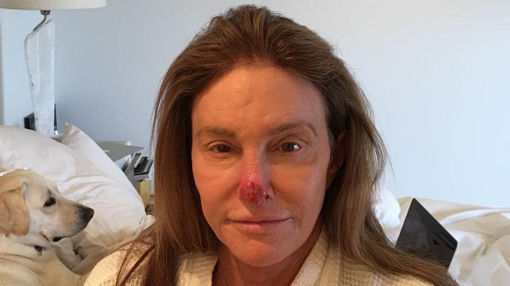 """Caitlyn Jenner  aconsejo a sus seguidores tras someterse a una operación de cáncer de piel: """"Usad siempre protector solar"""""""