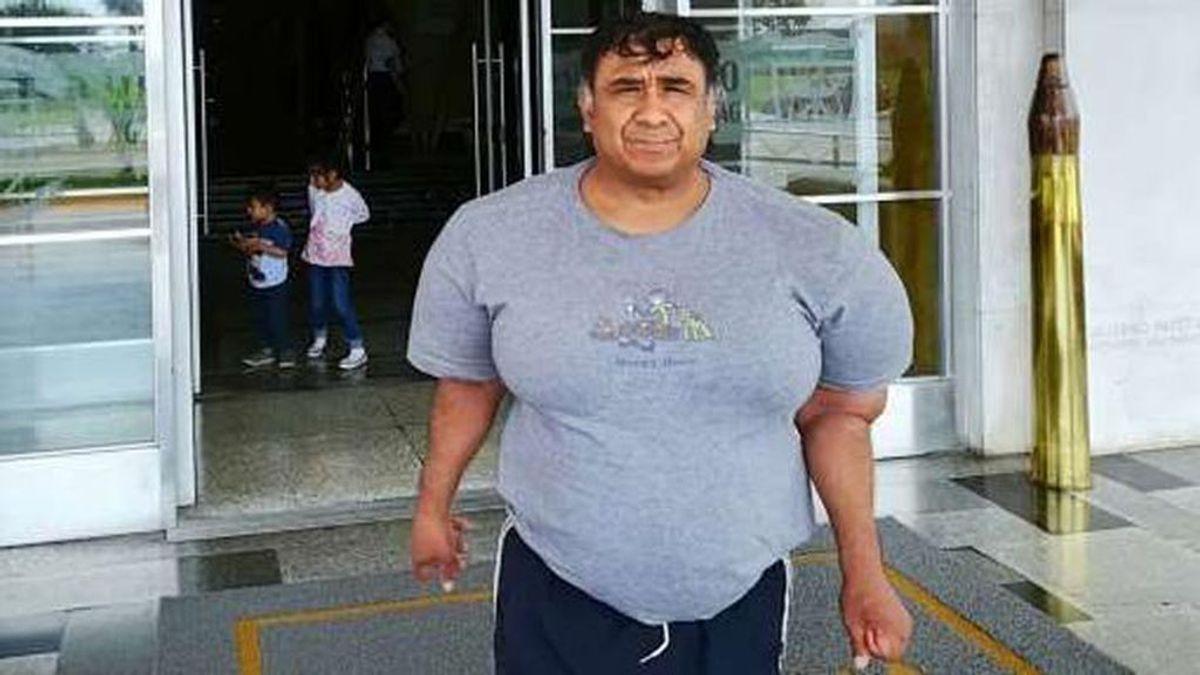 El drama de un buceador peruano: Vive con el cuerpo hinchado tras sufrir un accidente que casi le cuesta la vida