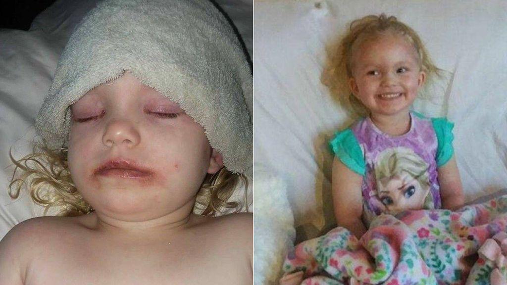 Alerta de los tóxicos en maquillajes infantiles después de que su hija sufriera una brutal reacción alérgica