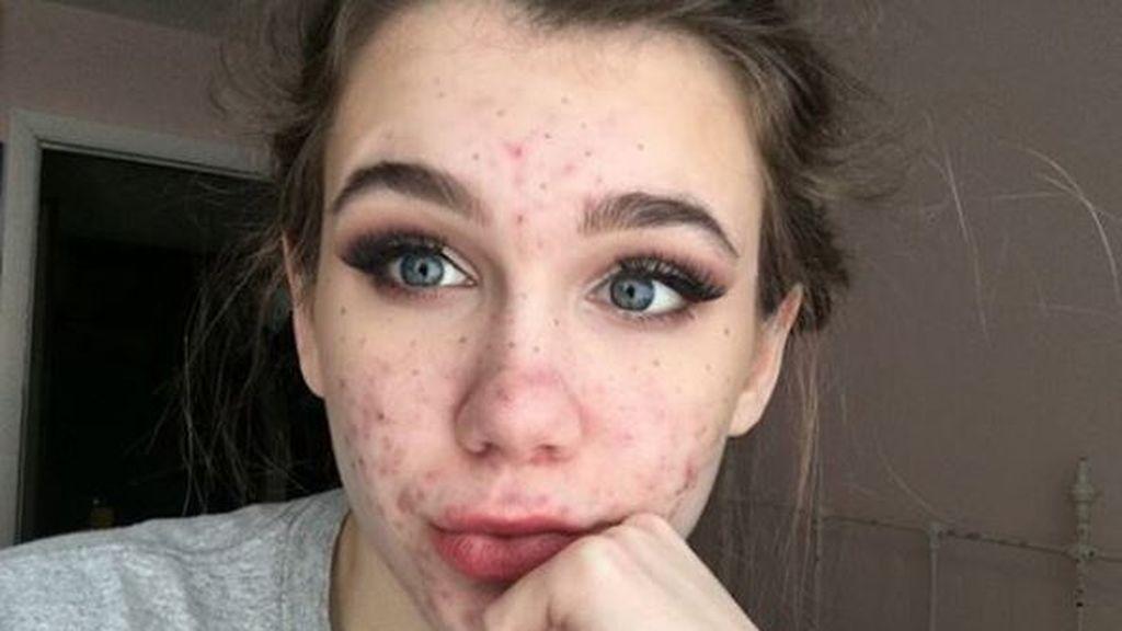 Una adolescente se queda ciega tras tratarse el acné con un antibiótico