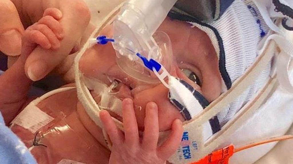 La increíble transformación de Grace: nació a las 23 semanas y pesó medio kilo