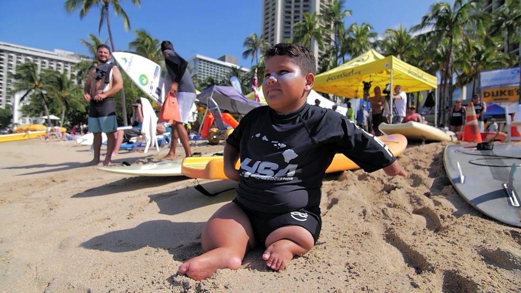 Davizinho, con malformaciones en piernas y brazos, campeón mundial de surf con 12 años