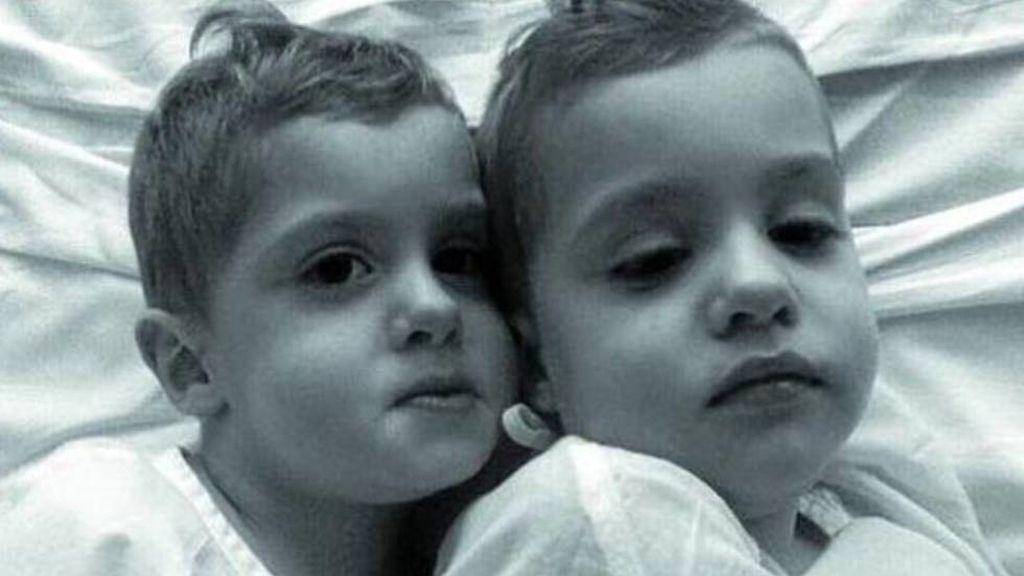 Muere Ibai, el segundo gemelo afectado también por una enfermedad genétca