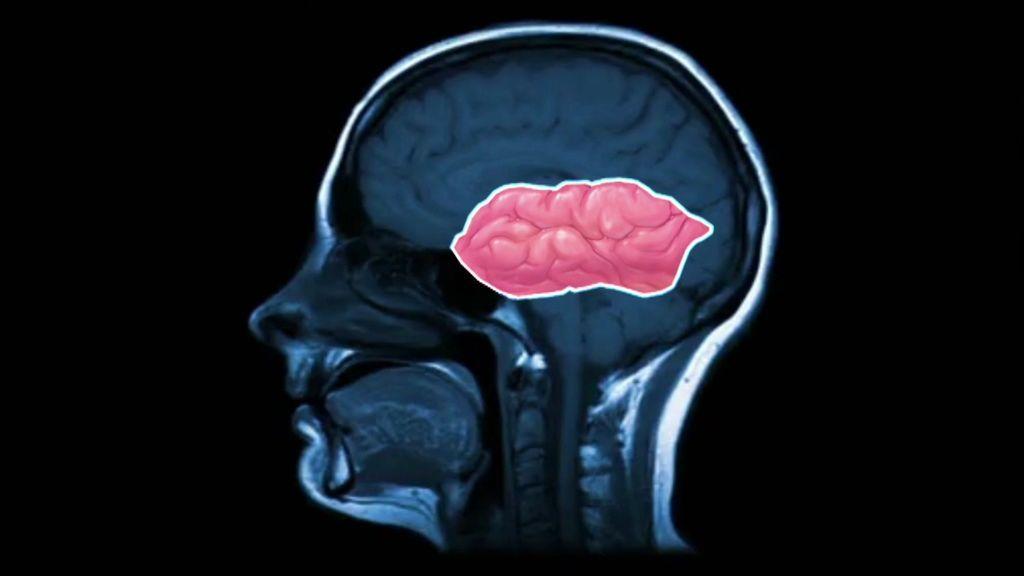 """¿Podemos potenciar nuestro cerebro? El síndrome del Savant """"crea"""" genios tras sufrir un golpe cerebral"""