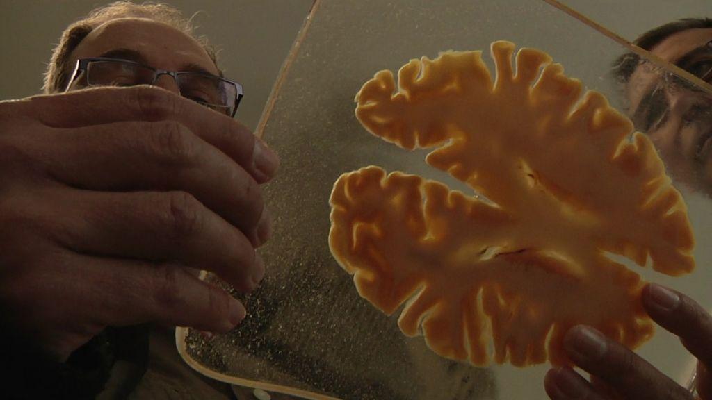 La frenología, el estudio del cráneo humano permitió la conservación de la cabeza maldita hasta nuestros días
