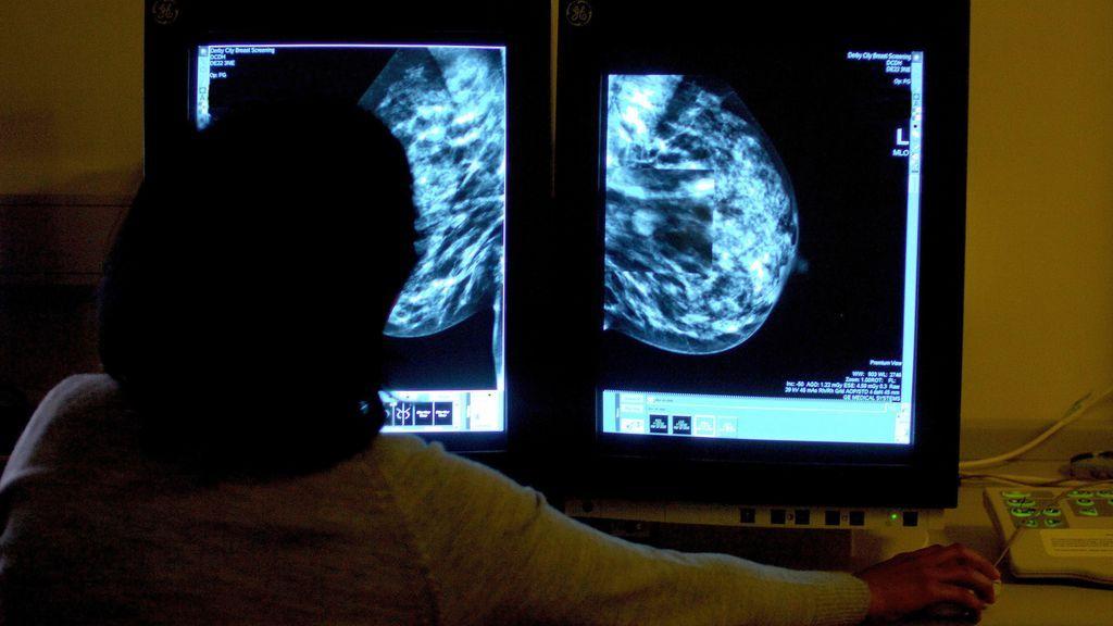 Un nuevo fármaco para el cáncer de pulmón reduce a la mitad el riesgo de muerte