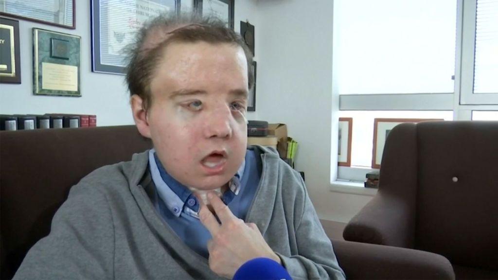 Jérôme Hamon, el hombre que con 43 años ha vivido con tres caras