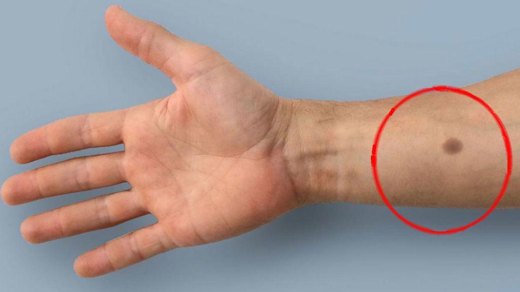 """Investigadores suizos desarrollan el """"tatuaje biomédico"""" que revelará si padeces cáncer"""
