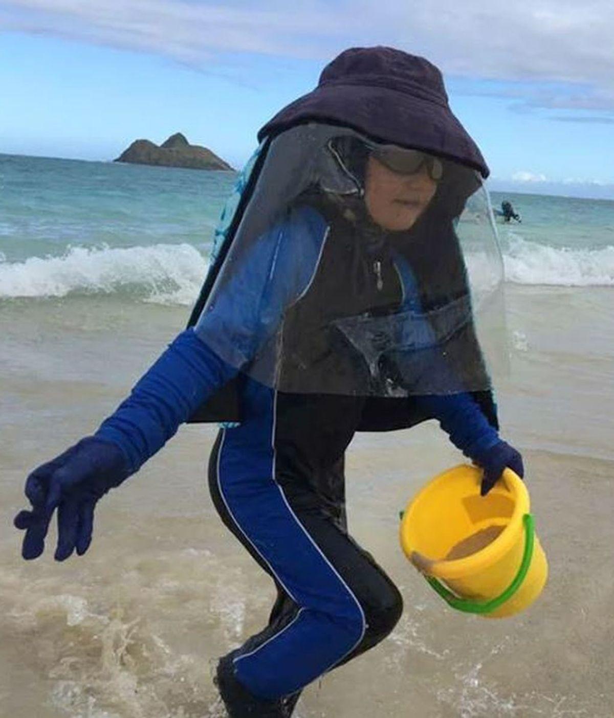 Con 7 años sufre una rara enfermedad que hace que el sol sea mortal para él