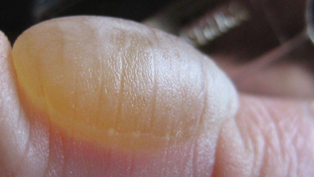 Una niña sufre quemaduras de segundo grado por 'El Desafío del Desodorante'