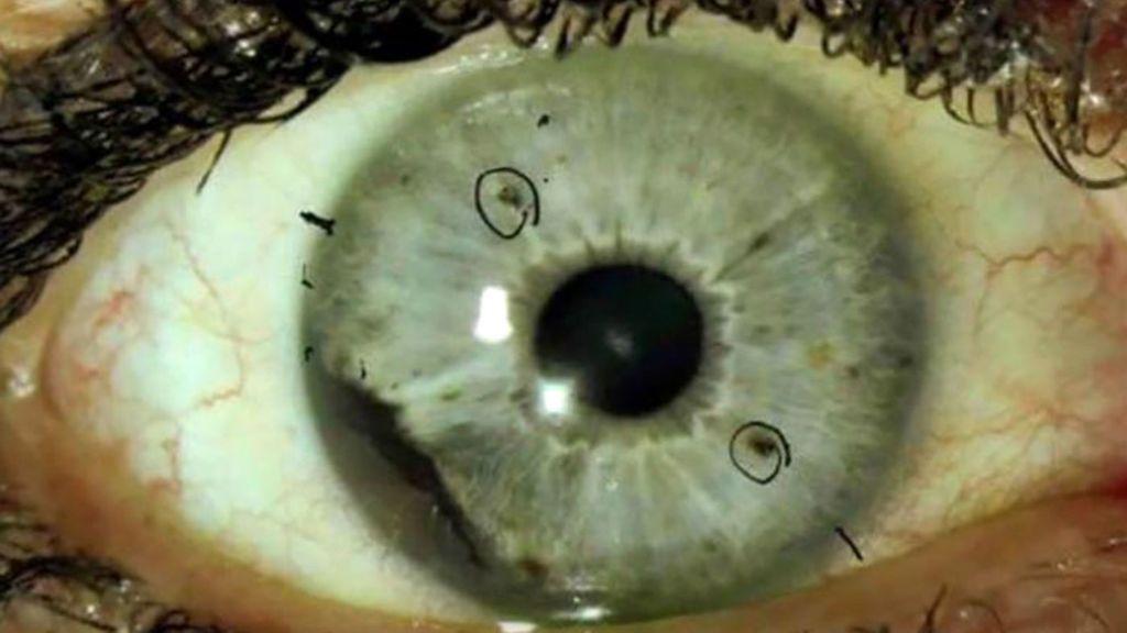 Un raro melanoma  ocular afecta a 48 personas que la mayoría estudió en la misma universidad