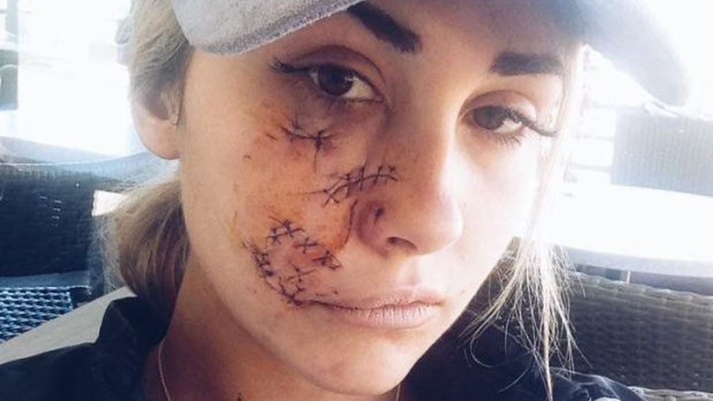 Una modelo se somete a una reconstrucción facial tras el brutal ataque de un perro