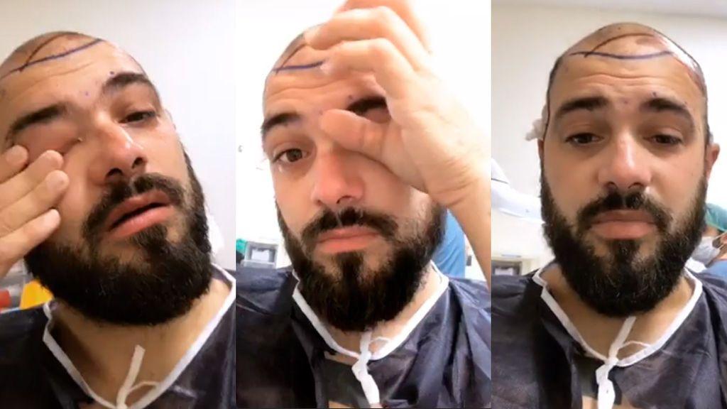 """Christian Blanch 'MyH' narra en directo su implante de pelo en Turquía: """"Estoy hecho polvo"""""""
