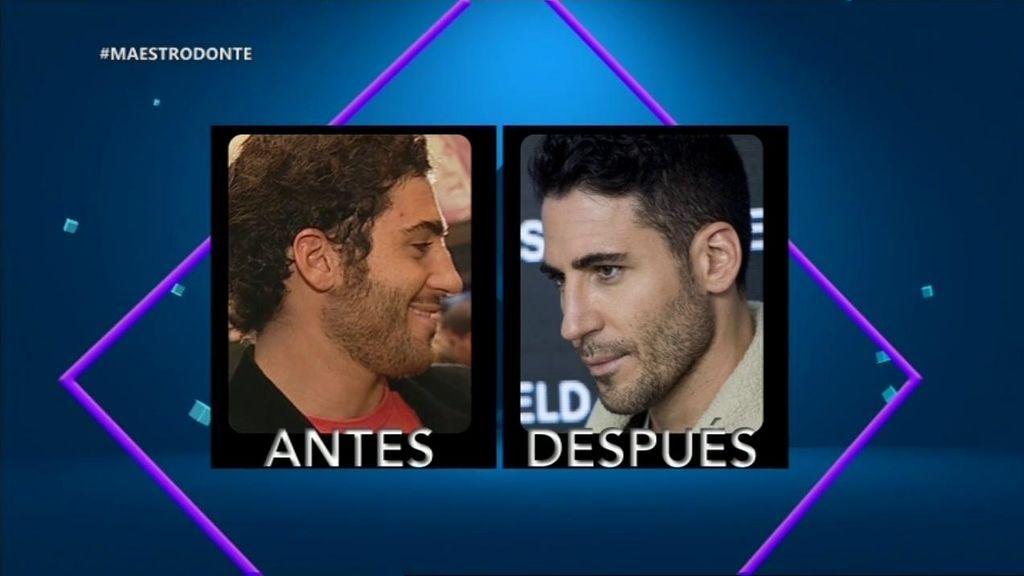 ¿Ha habido retoques? El rostro de Miguel Ángel Silvestre, antes y después de convertirse en el Duque