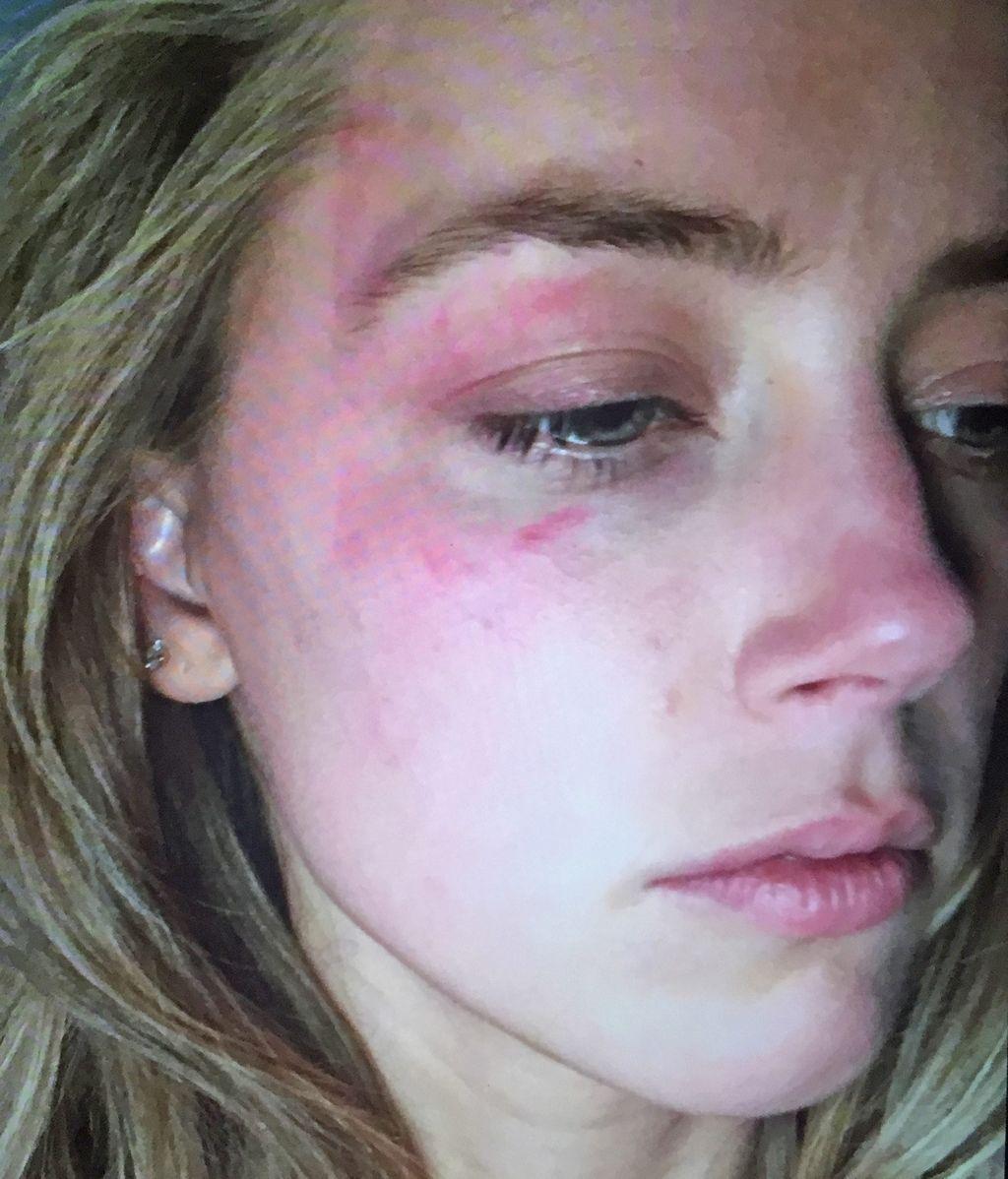 Amber Heard maltratada
