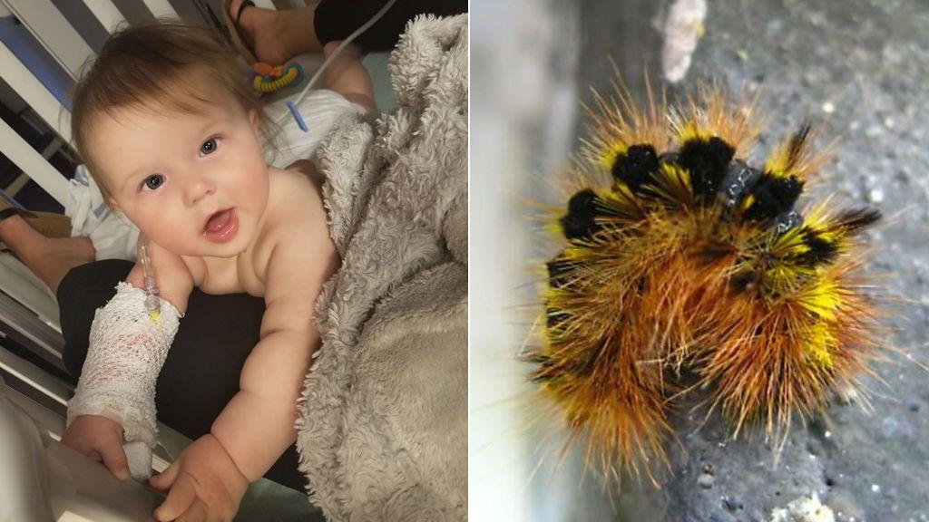 Intervienen a una bebé de urgencia para extraerle de la boca pelos de oruga