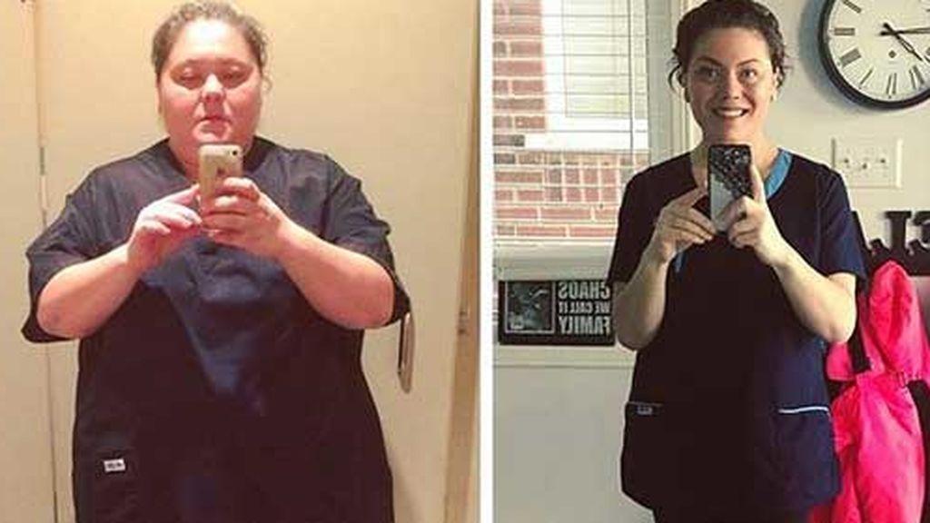 """Pierde 70 kilos pero se seguía sintiendo como un """"monstruo"""""""