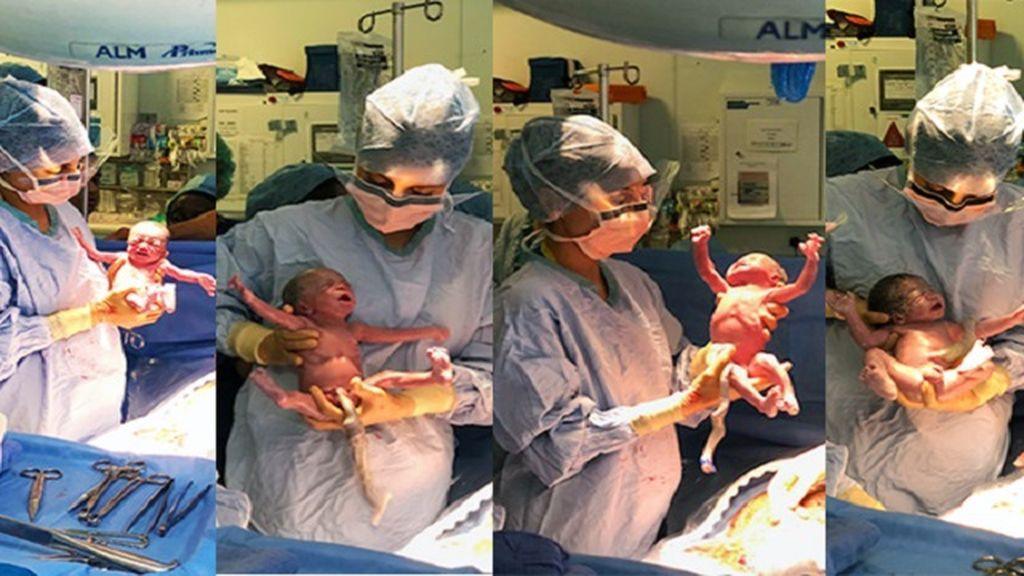 Una mujer da a luz a cuatro niños tras casi 8 meses de embarazo