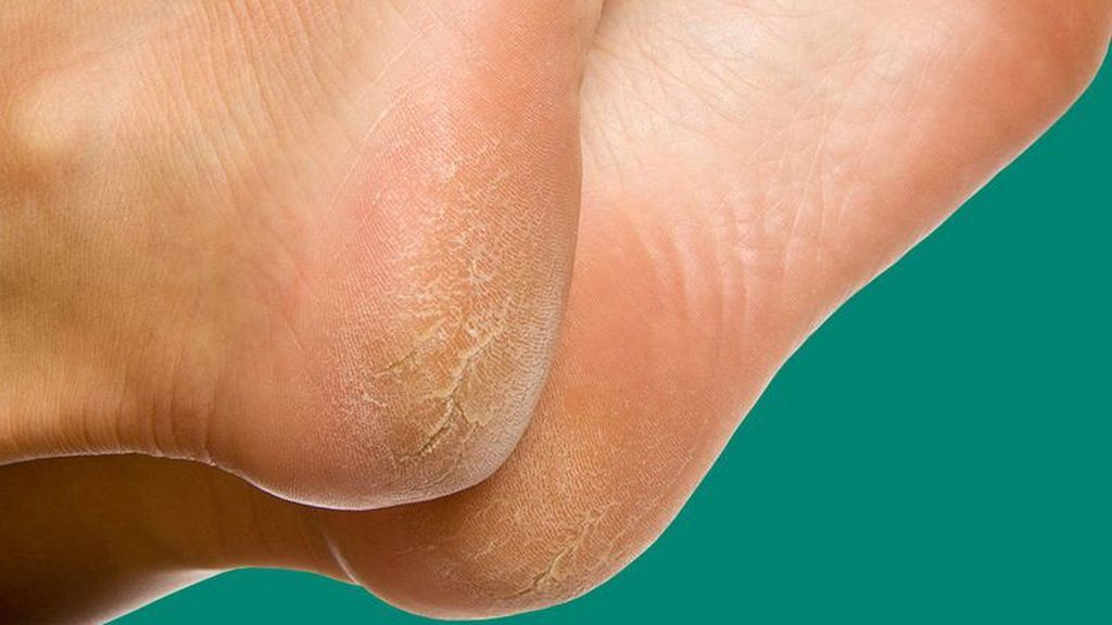 7-reasons-your-feet-are-peeling-1494682214