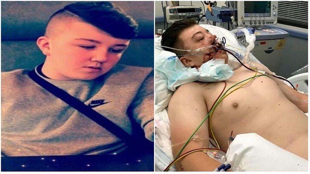 Reece Murphy (16 años) muere tras consumir MDMA