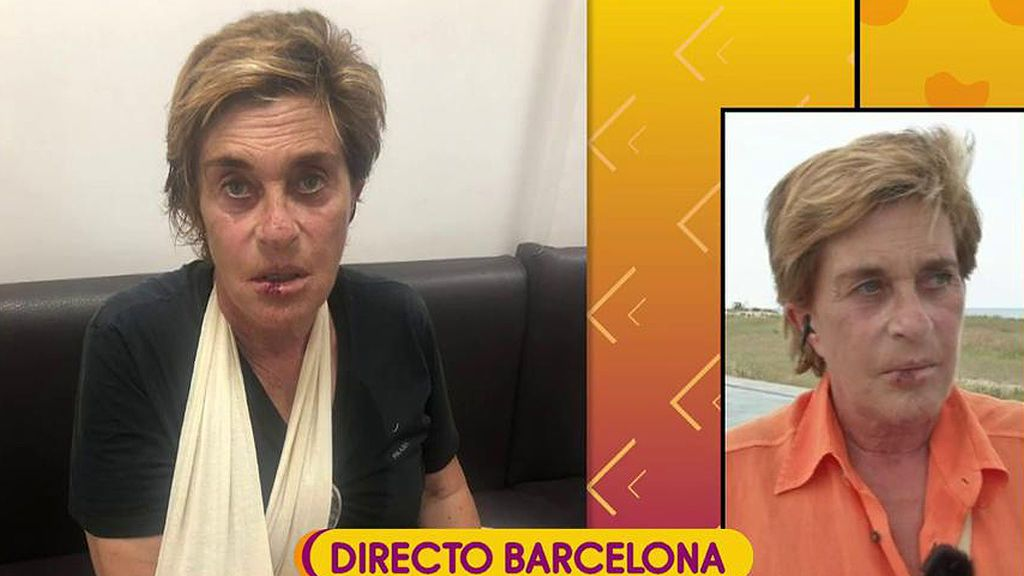"""Chelo García Cortes, en directo tras su caída: """"El día anterior me había hecho un blanqueamiento de dientes"""""""