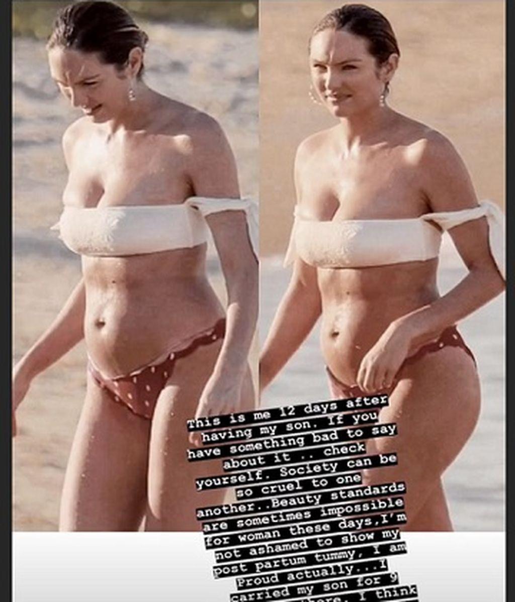 Candice Swanepoel responde al 'body shaming'