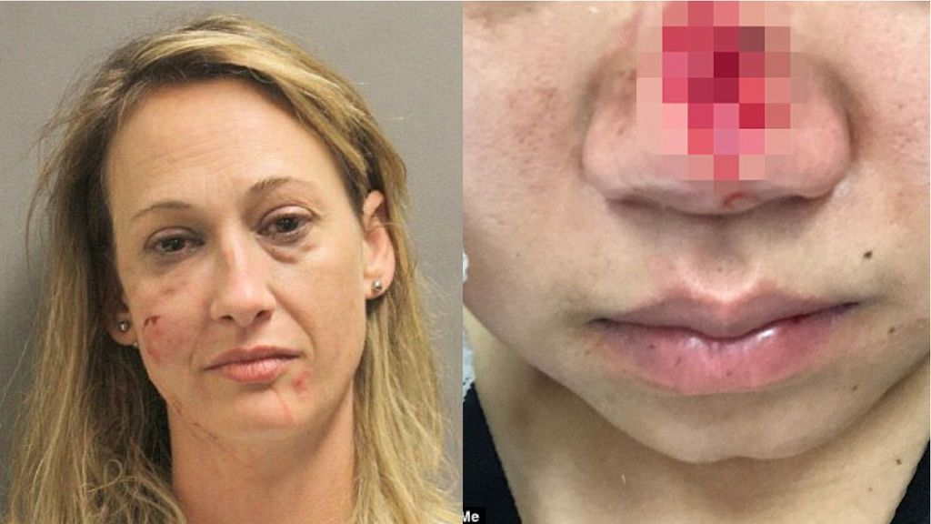 Detenida una mujer por arrancar a otra un trozo de nariz de un mordisco