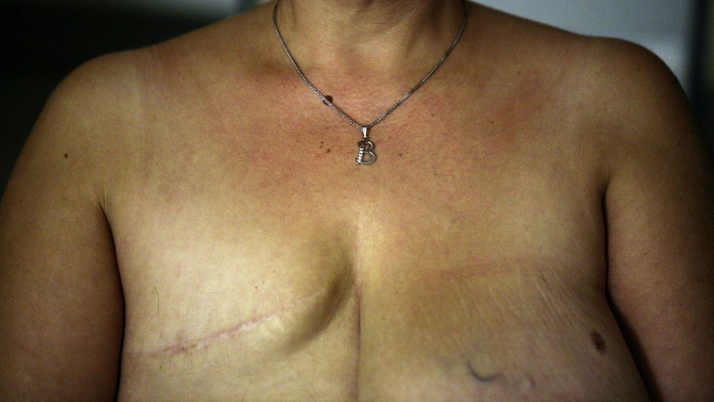 Mastectomía: cómo conservar la vida para recuperar el pecho