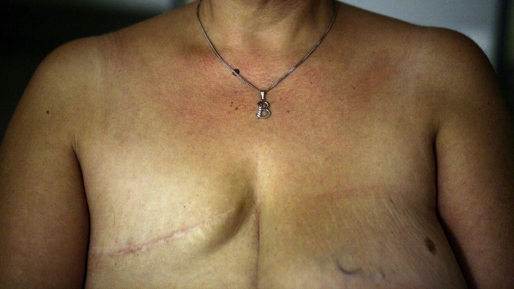 Mastectomía: cómo conservar la vida para recuperar el pecho después