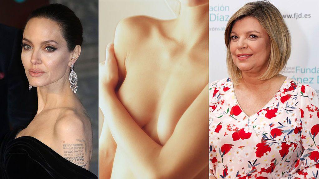 Qué es una mastectomía doble y por qué se recomienda en casos como el de Terelu o Angelina Jolie