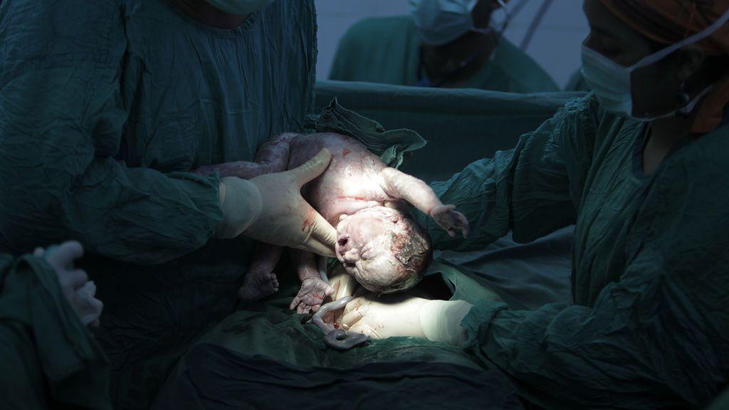 Le practican una cesárea sin anestesia y no paran hasta que se desmaya del dolor