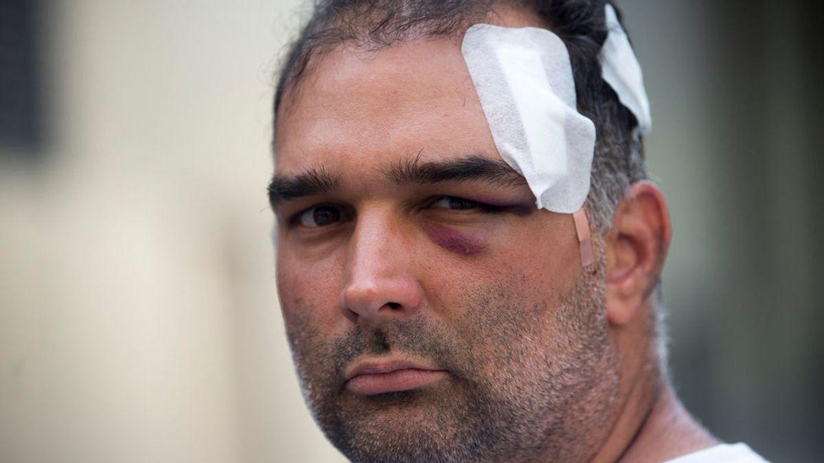 El Sindicato de Manteros asegura que el turista agredido en Barcelona iba bebido y empezó la pelea
